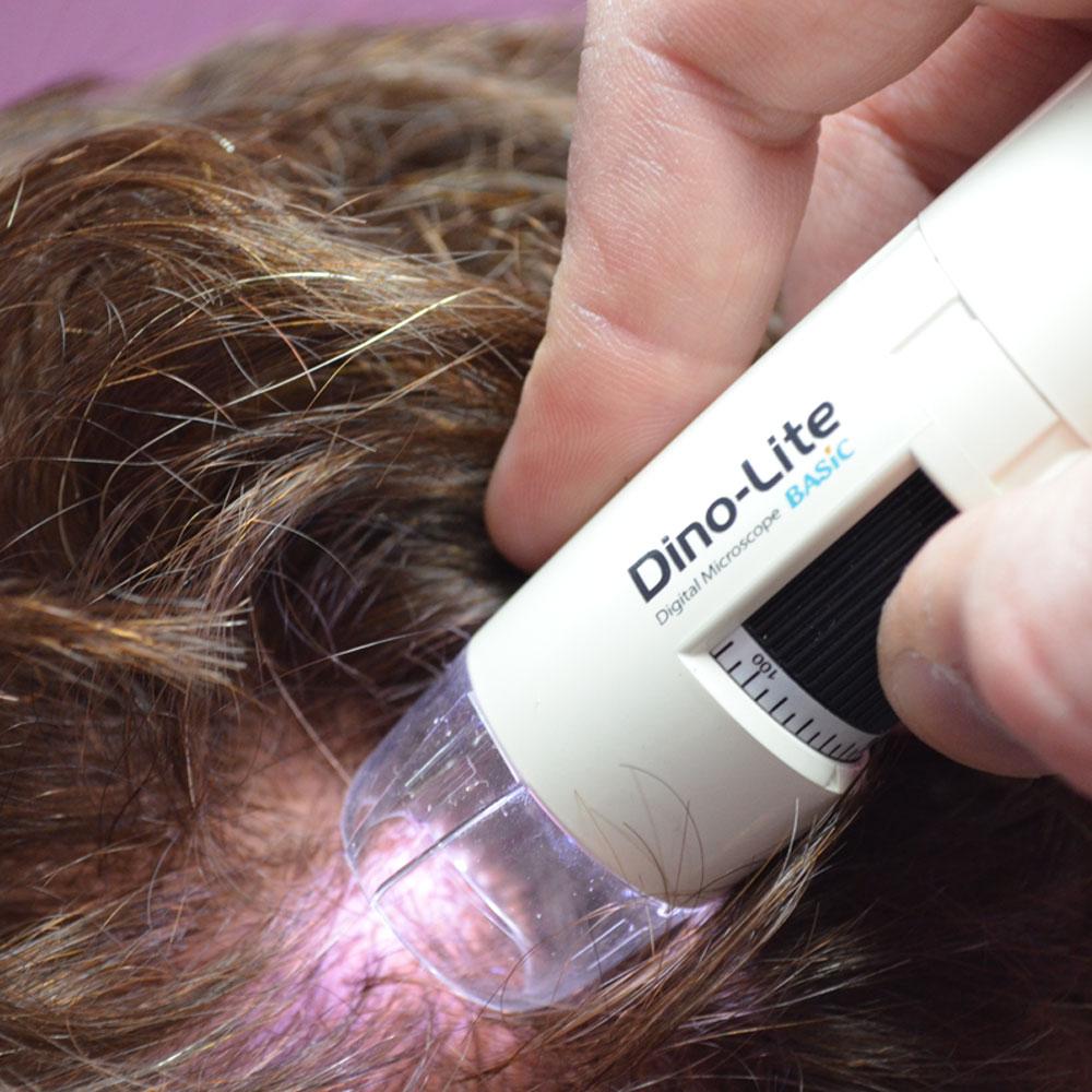 Análisis cuero cabelludo